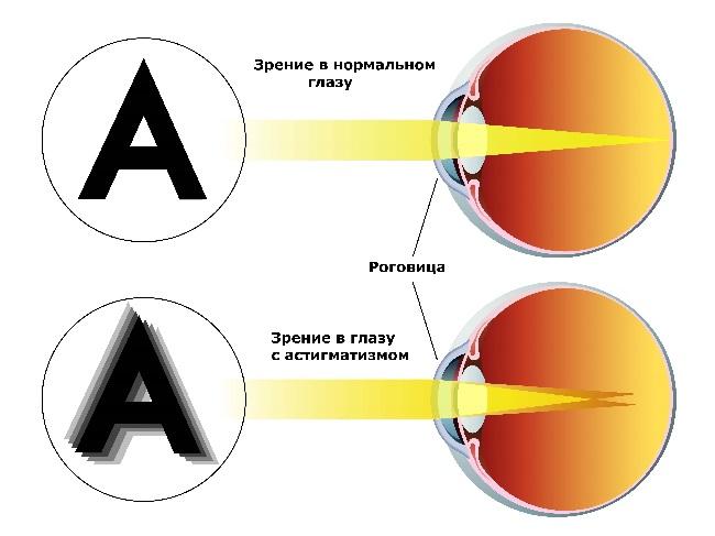 Как вылечить близорукость у детей без очков