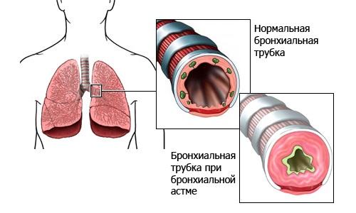 медикаменты от паразитов для людей