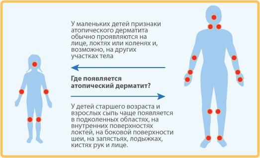 Экзема разновидность симптомы лечение