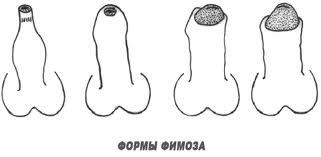 Формы фиоза, виды фимоза
