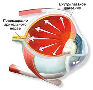 Заболевание глаза глаукома