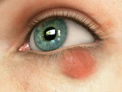 Халязион глаза