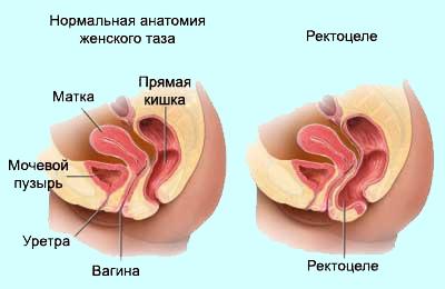 леваторопластика фото до и после