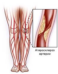 Атеросклероз облитерирующий