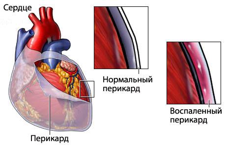 лекарственные препараты от паразитов в организме человека