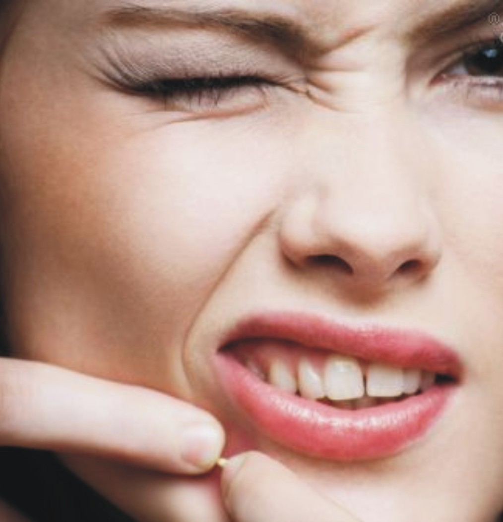Угревая сыпь, симптомы и лечение