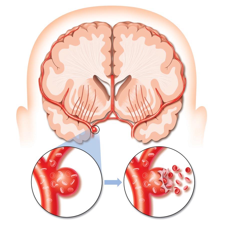 Смерть от атеросклероза сосудов головного мозга, Атеросклероз сосудов