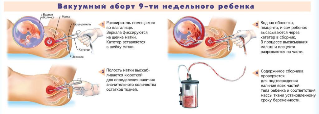 Возможна ли беременность без полового контакта