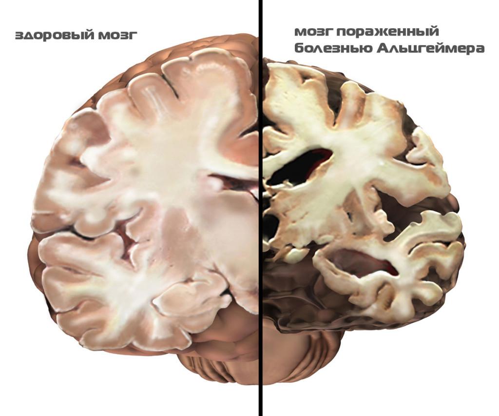 Мозг человека с Альгеймером