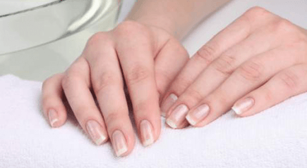 аллергический дерматит на руках